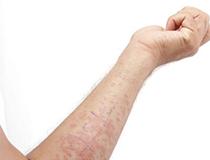 湿疹症状需认清 治疗方法有哪些